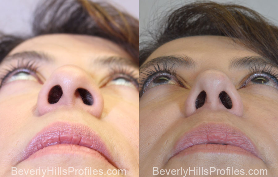 Facelift Before After - female, bottom view