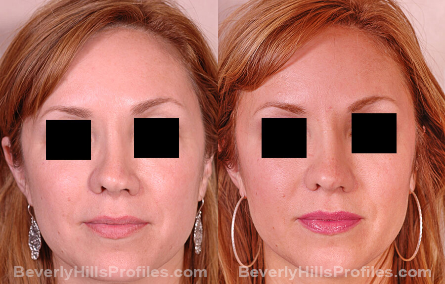 Revision Rhinoplasty Before and After Photo Gallery - female, front view