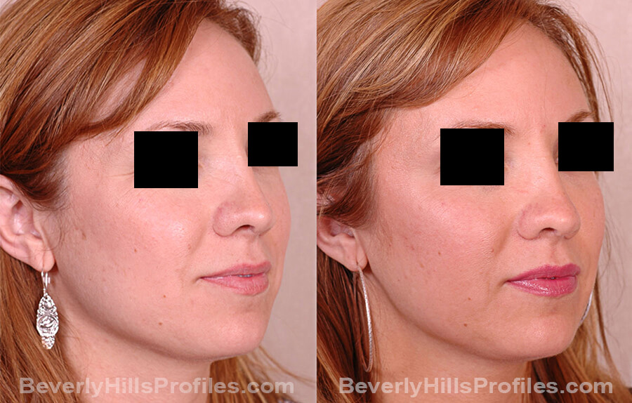 Revision Rhinoplasty Before and After Photo Gallery - female, oblique view