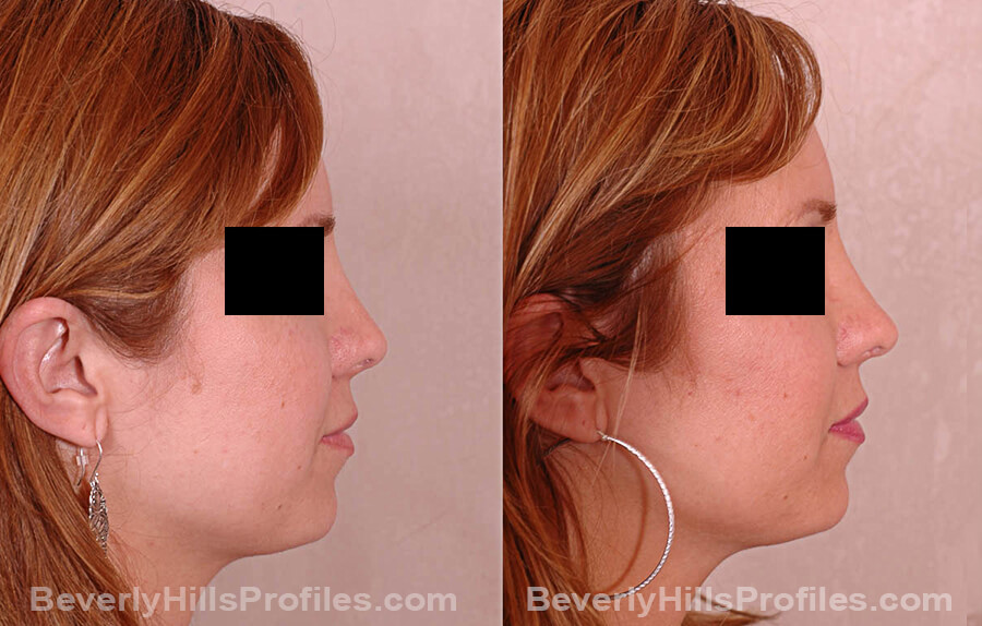 Revision Rhinoplasty Before and After Photo Gallery - female, side view