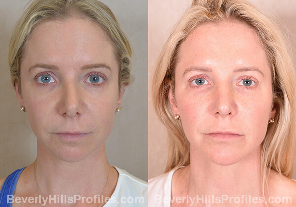 Chin Implants Before & After Photos - front view