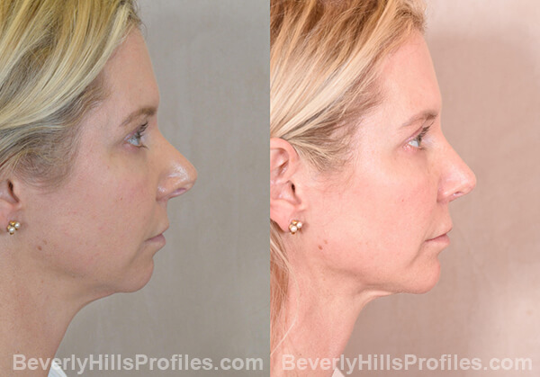 Chin Implants Before & After Photos - profile view