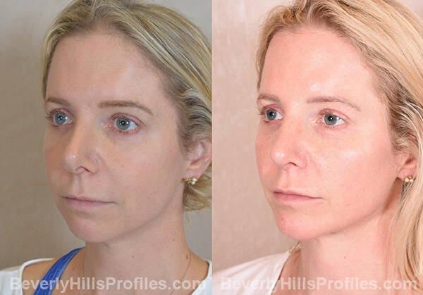 Chin Implants Before & After Photos - oblique view