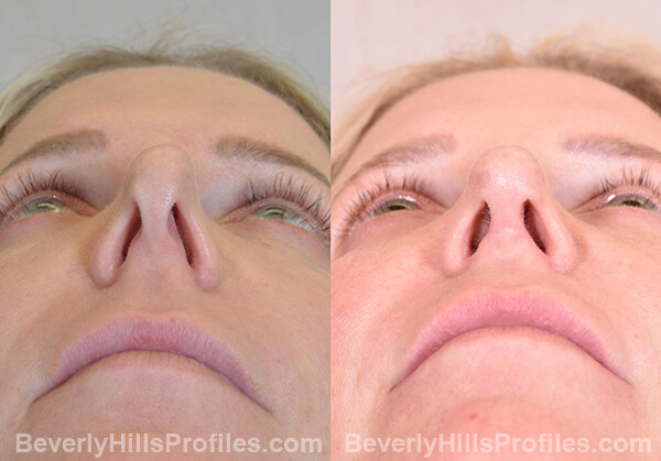 Chin Implants Before & After Photos - bottom view