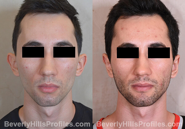 Otoplasty Before and After Photo Gallery - male, front view