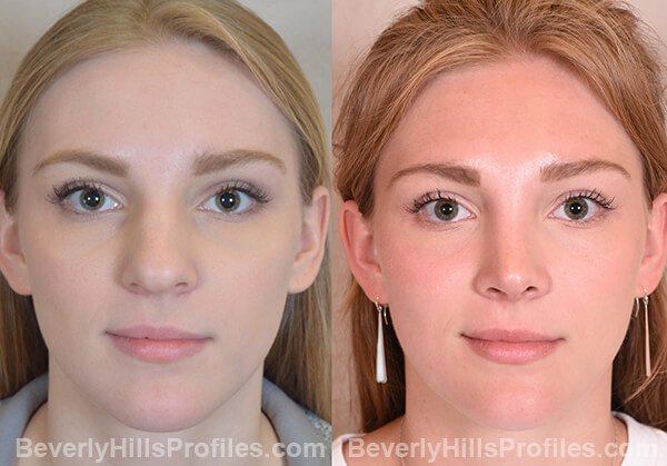Nose Job Before and After Photo Gallery - female, front view